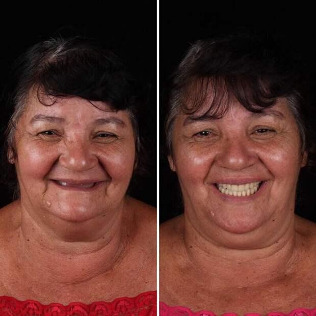 Врач помогает нуждающимся вернуть улыбку вовсе32зуба