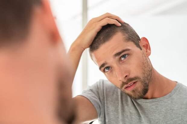 Мужчины лысеют от переработок