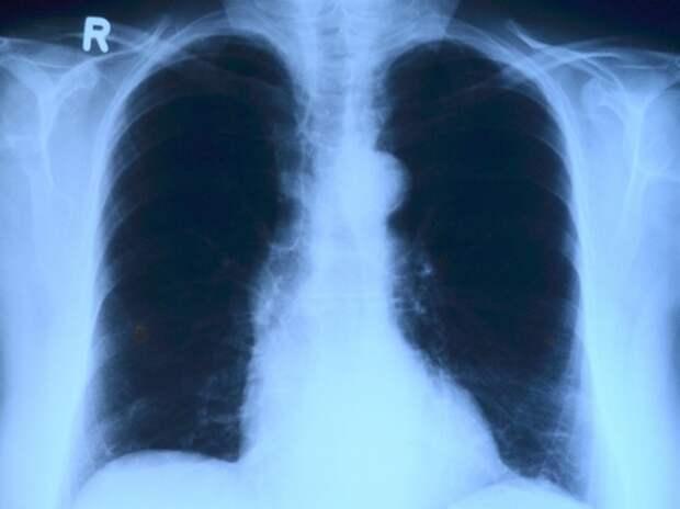 Коронавирус предложили убивать радиацией: какой дозы достаточно
