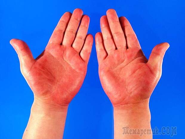 Заболевания, о которых могут рассказать ваши руки