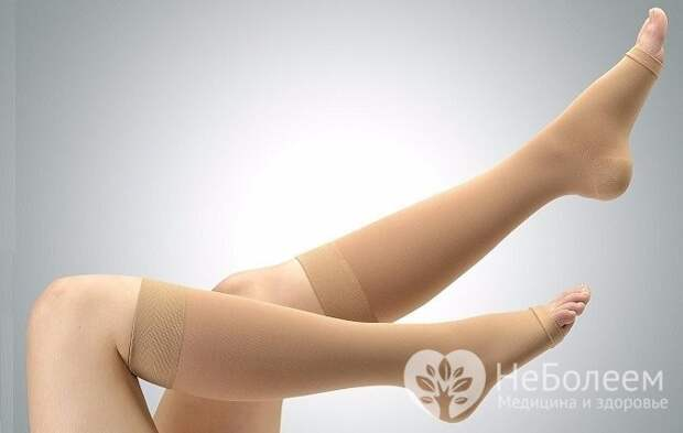 Ношение компрессионных чулок - эффективный метод лечения варикоза нижних конечностей