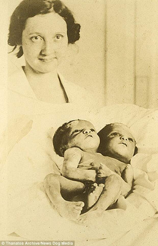 Эти сиамские близнецы были в свое время популярным живым аттракционом деформация, люди