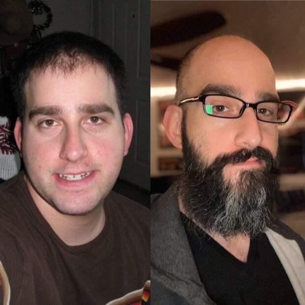 20 фотографий, которые доказывают, что борода может изменить мужчину донеузнаваемости