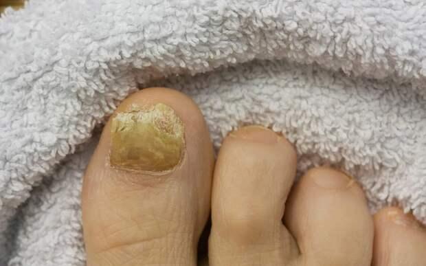 Микоз — грибковое поражение ногтей на пальцах ног