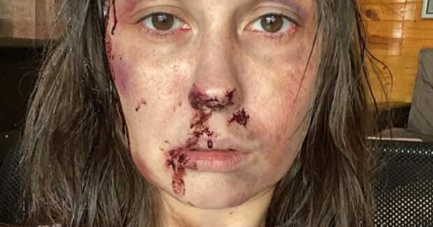 Муцениеце напугала подписчиков фото в «кровавом» гриме