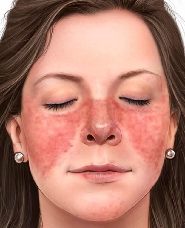 Сигналы вашей кожи, предупреждающие о серьезных заболеваниях