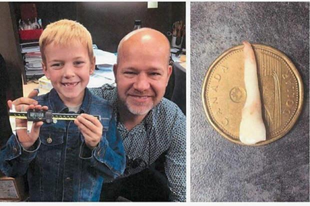 Мальчик вырастил самый длинный зуб и попал в Книгу рекордов Гиннесса