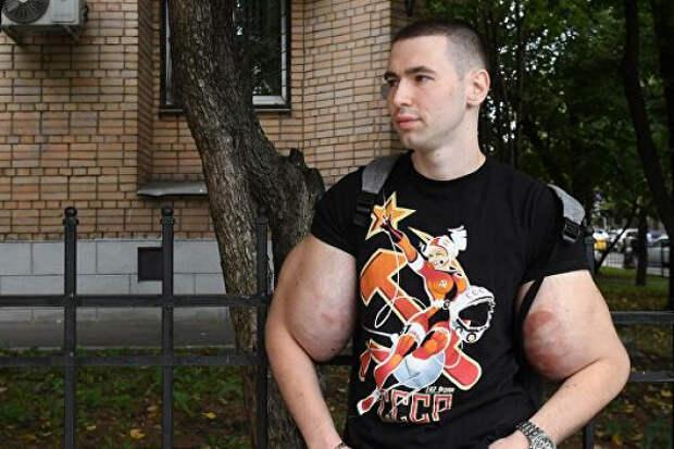«Сажайте втюрьму его»: Руки-базуки вмешался вдело Ефремова