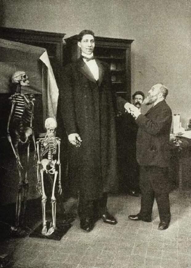 Самый высокий человек, которого когда-либо видел свет, — Федор Махнов. Его рост 285 см при весе около 182 кг. 1900-е. Весь Мир, история, фотографии