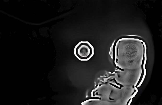 Тайна гибели группы Дятлова нашлась на 34-м кадре их фотопленки