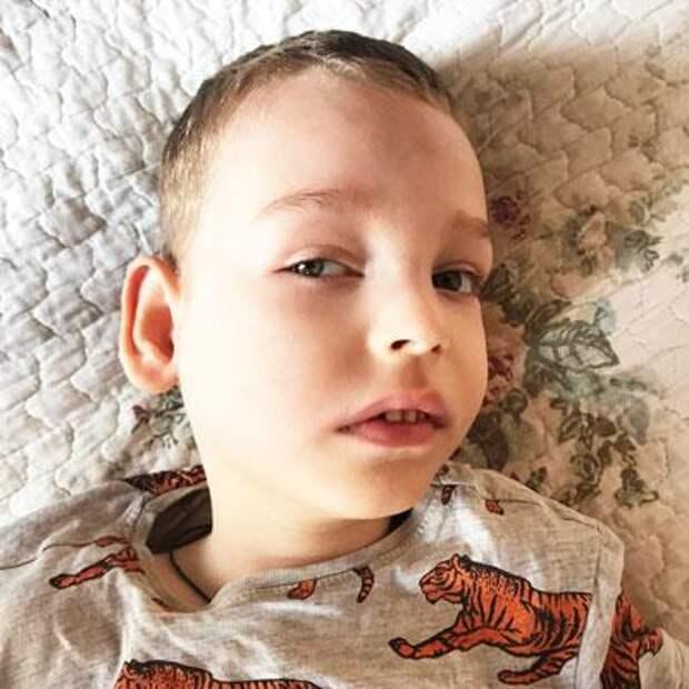 Наум Белов, 4 года, синдром Миллера – Дикера (порок развития головного мозга), структурная фокальная эпилепсия, требуются лекарства, 45305₽