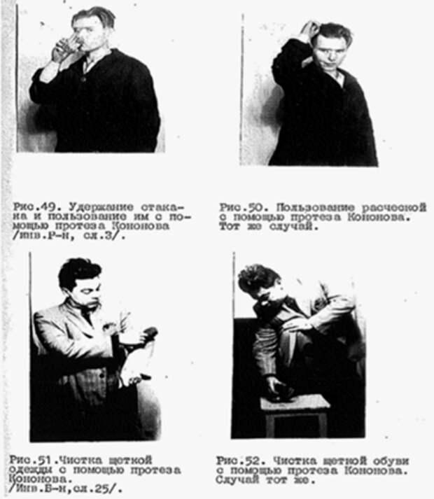 Использование протеза Кононова