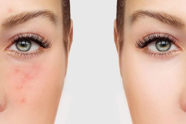 Тонкая связь между проблемной кожей и гормонами