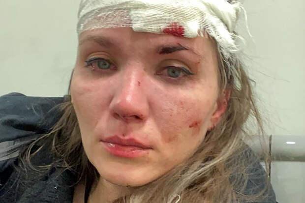 Получившая пивным бокалом по голове Веденская решила засудить обидчицу