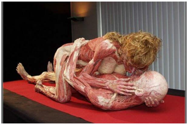 """Не для слабонервных! Немецкий художник- патологоанатом Гюнтер фон Хагенс (Gunther von Hagens) и его музей """"Мир тела"""" (Body world). Трупы настоящие!!!! искусство, красиво, поразительно, тело, человек, шедевры"""