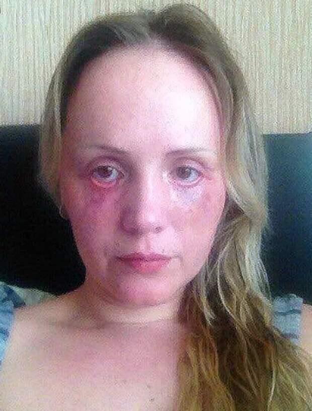 Краснодарский «Доктор Франкенштейн» проводила пластические операции накухне ивкладовке