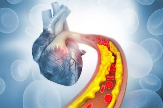 Высокий уровень холестерина в крови: как можно вернуть здоровье