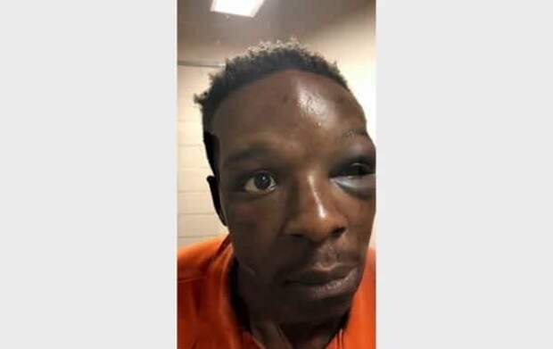 В США уволили зама шерифа за избиение афроамериканца