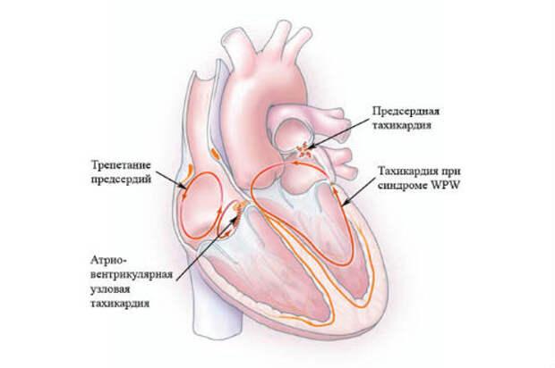 Тахикардия: причины, симптомы и лечение народными средствами