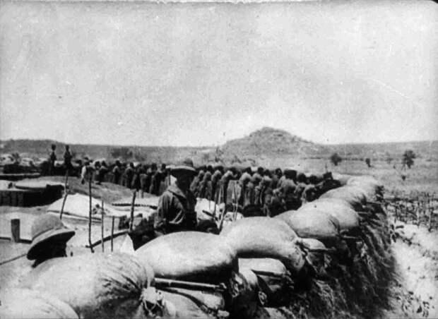 Нулевой пациент с ВИЧ мог появиться еще во время Первой мировой войны