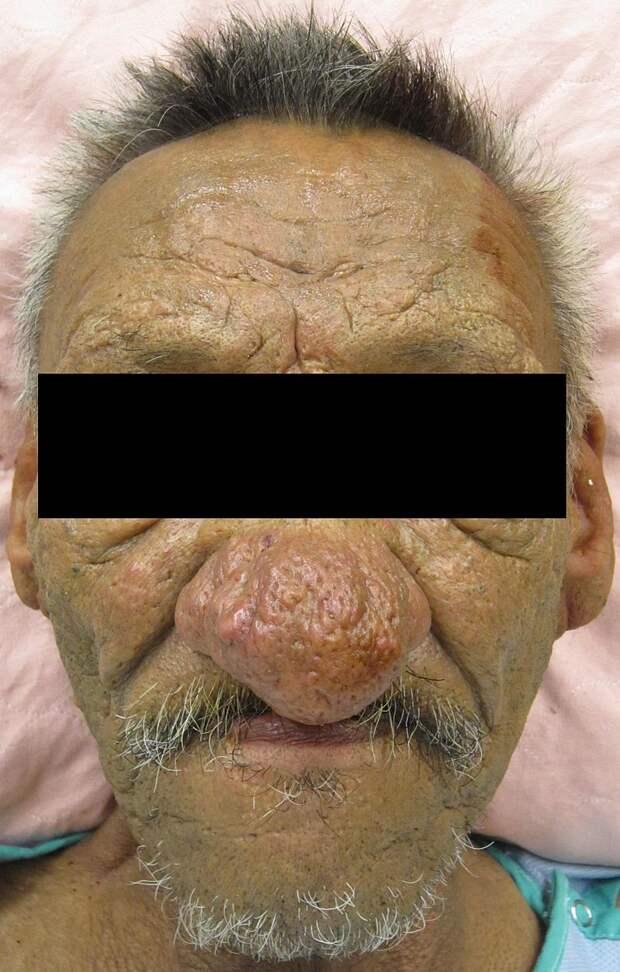 Что делать с красными щеками, чтобы не вырос нос