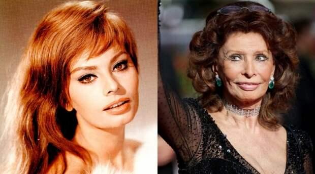 Звездные красавицы ХХ века тогда и сейчас