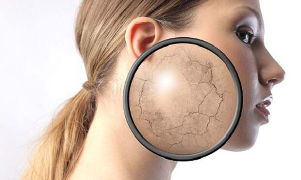7 быстрых способов высушить и испортить собственную кожу