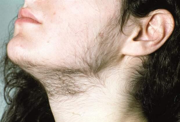 21 тревожный симптом, с помощью которого ваше тело хочет вам что-то сказать...