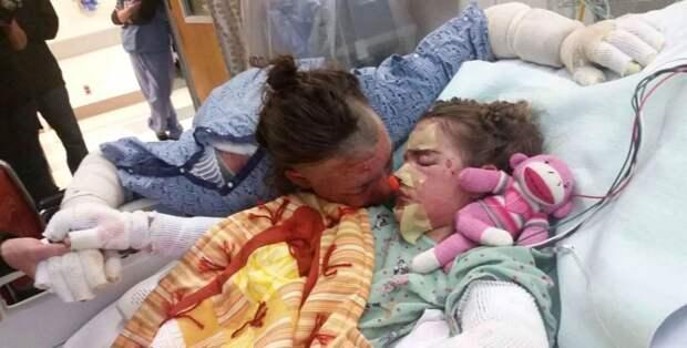 Спасая детей, она получила страшные ожоги. Сильнее материнской любви ничего нет!