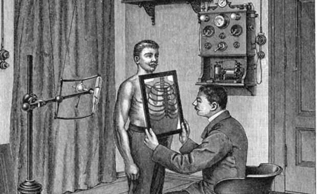 Врач смотрит рентгенограмму грудной клетки пациента, начало ХХ века. | Фото: nlo-mir.ru.