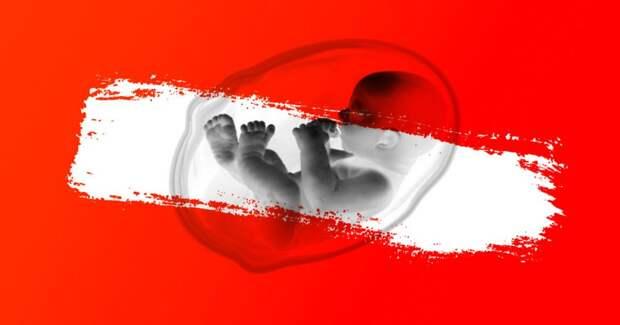 ❌ Первые во всем мире: 5 исторических фактов об абортах в СССР