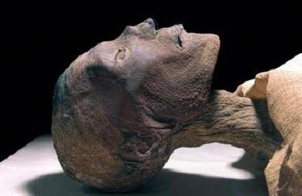 Чем болели наши древние предки