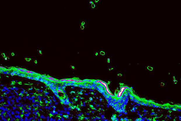 Как Т-лимфоциты спасут нас от коронавируса и почему они лучше, чем антитела