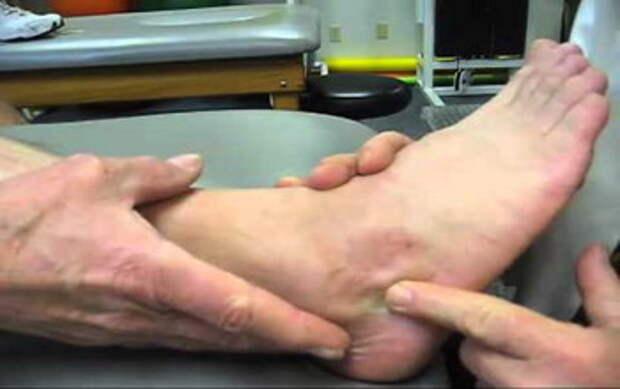 Разрыв сухожилия пятки