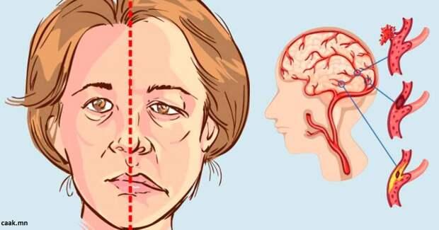5 признаков, что вы ″в зоне риска″ для такой страшной штуки как инсульт