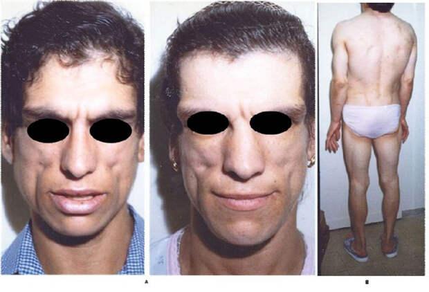 Врожденная липодистрофия Берардинелли — Сейп (СЛБС)