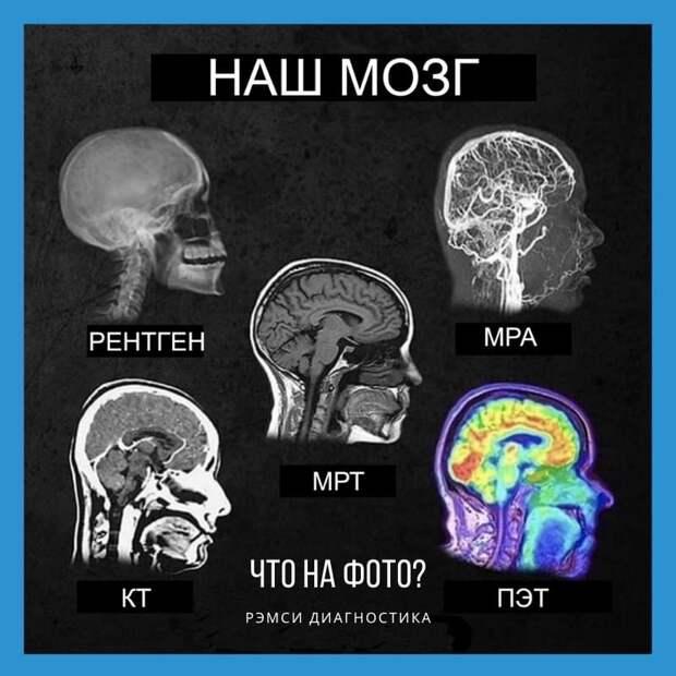 Наш мозг. РЭМСИ диагностика