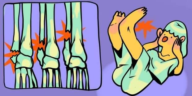 Как распознать перелом лодыжки и что делать дальше