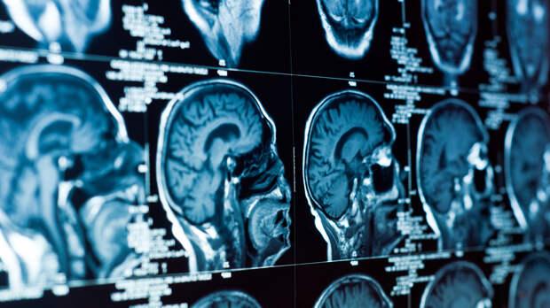 У казанского стрелка диагностировали заболевание мозга
