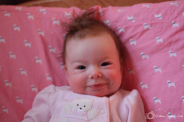 Родители радовались, что их малышка постоянно улыбается, но оказалось, это из-за болезни