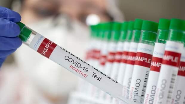 В Молдавии за сутки выявили 109 новых случаев коронавируса