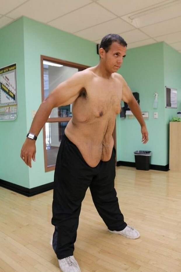 Избавился от 181 килограмма кожа, красота, невероятное, похудение, растяжки. шрамы, ужас