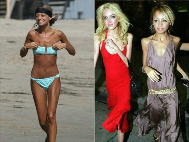 Звездная болезнь: кто из знаменитостей столкнулся с анорексией