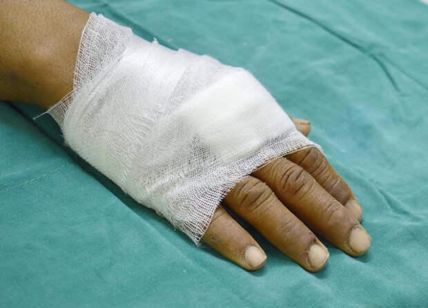 Солевые повязки закрепляют бинтом
