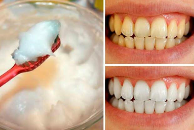 Средство для отбеливания зубной эмали. | Фото: Мой город.