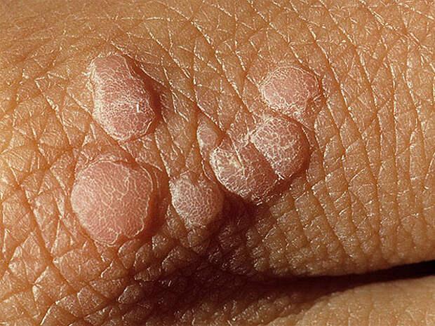 Бородавки зачастую имеют телесный цвет.