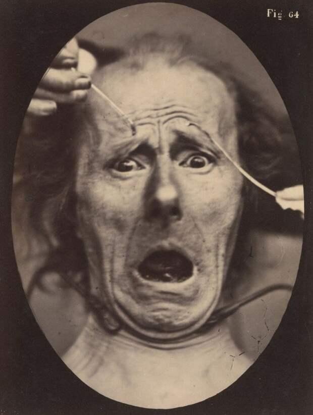 Изучение эмоций с помощью электрического тока. Вот как невропатологи проверяли работу мышц лица!