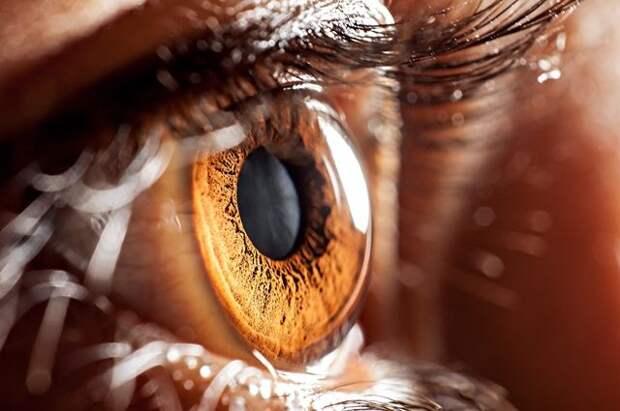 Рак, желтуха, избыток холестерина. Какие проблемы со здоровьем выдают глаза