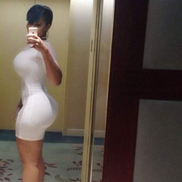 огромные задницы женщин большие размеры, пластическая хирургия, попа