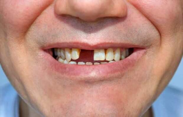 Можно ли выдернуть чеку из гранаты при помощи зубов без последствий